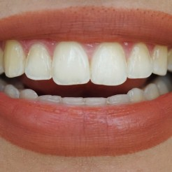 Day 12 (hismile whitening)