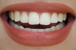 Day 12 (hismile whitening + whitening pen)